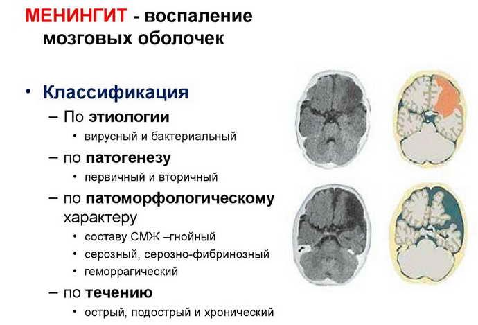 виды менингита