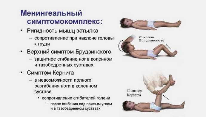 Положительная реакция при проверке симптома Пулатова при менингите