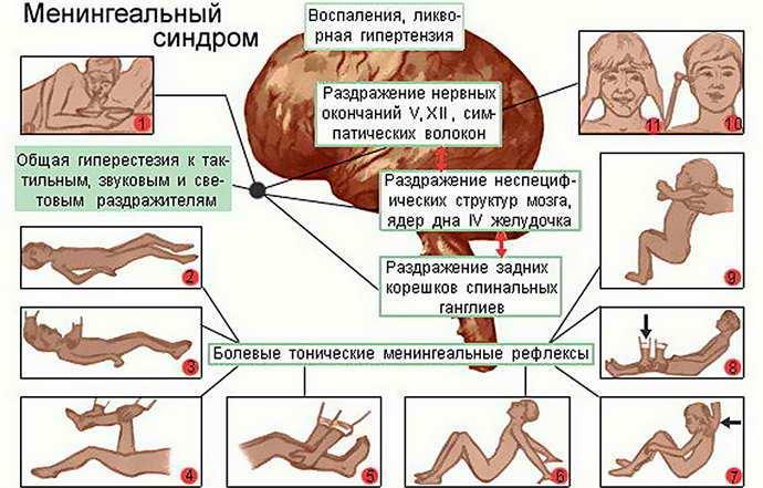 Противопоказания вакцинации от менингита