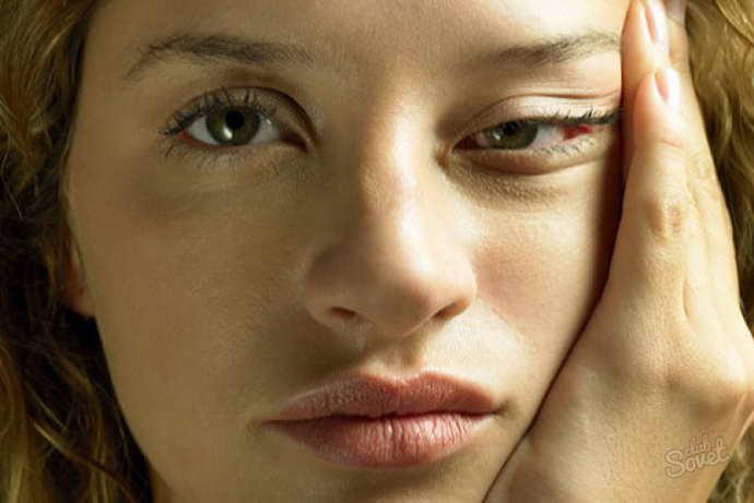 мигрень без ауры симптомы
