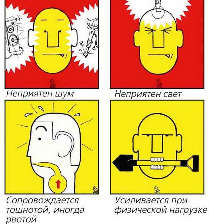 Приступ простой мигрени