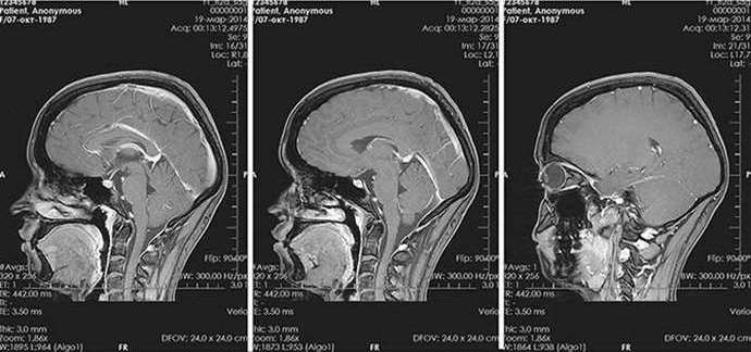 Гистологические особенности позволяют разделить микроаденому гипофиза