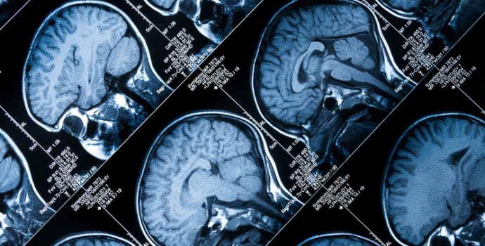 Диагностика гипофиза: МРТ с контрастом. Возможные противопоказания