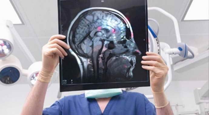 В чем преимущества МРТ головы