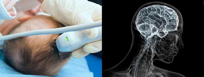 Какой вред причиняет процедура МТР головы