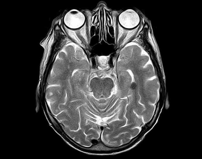 Чтобы провестиМРТ артерий и вен головного мозга