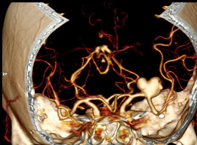 МСКТ – многослойная компьютерная томография