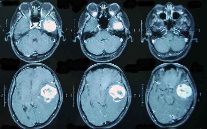 Обследование тканей мозга может проводиться как с окрашенным веществом