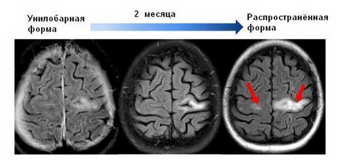 мультифокальная прогрессирующая лейкоэнцефалопатия факторыриска