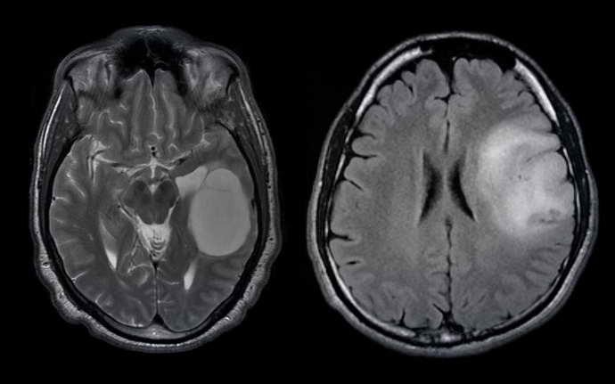 олигодендроглиома головного мозга