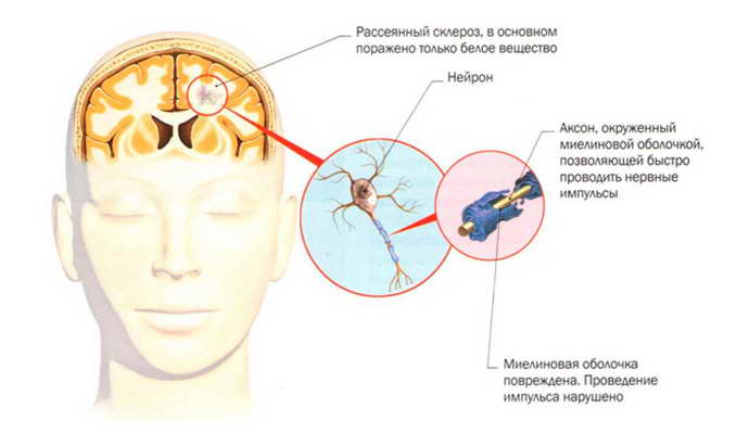 рассеянный склероз когда проявляется