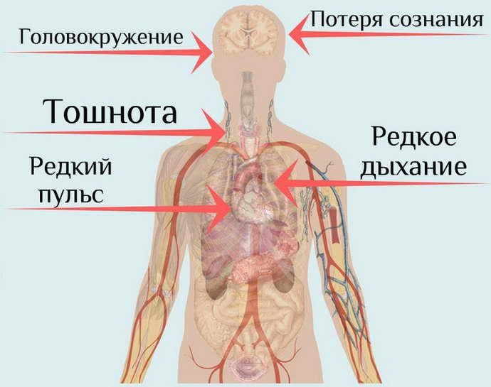 Симптомы и признаки обморока