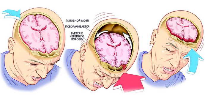 сотрясения мозга