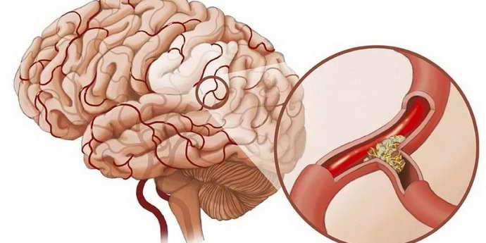 Терапия кровеносных сосудов в мозгу