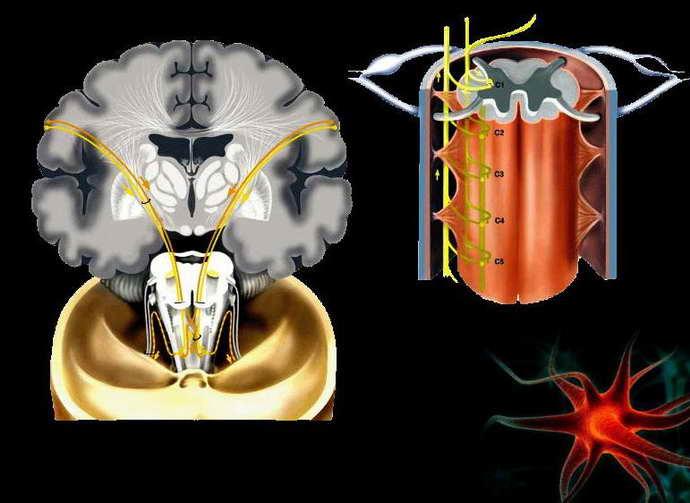 Поражение черепно-мозговых нервов