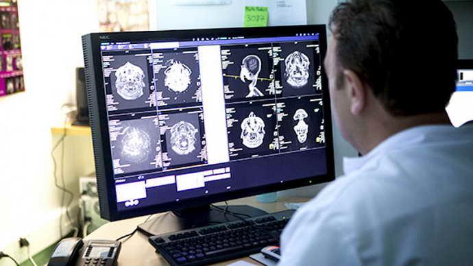 Классификация рассеянного склероза
