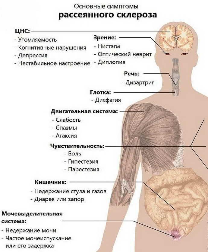 рассеянный склероз особенности