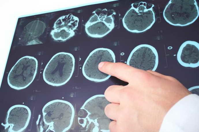 Применение дифференциальной диагностики рассеянного склероза