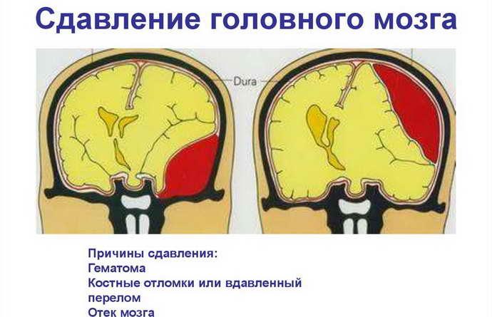 Сдавление головного мозга почему возникает