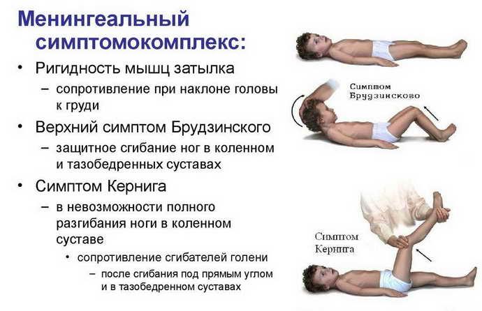 при менингизме отсутствуют воспалительные изменения спинномозговой жидкости