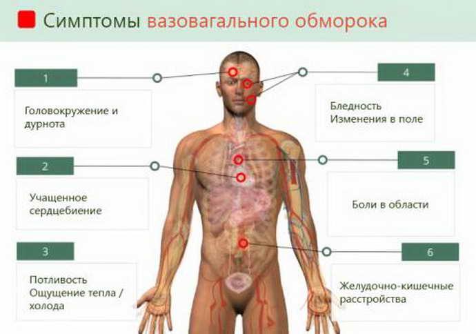Симптомы обморока