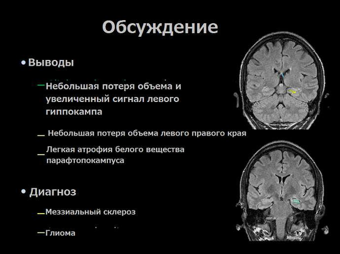 склероз гиппокампа причины