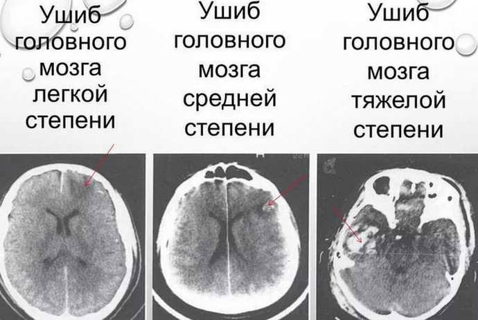 сотрясение мозга что это