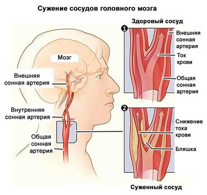 стадии сужения сосудов головы