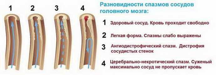 виды спазмов головного мозга