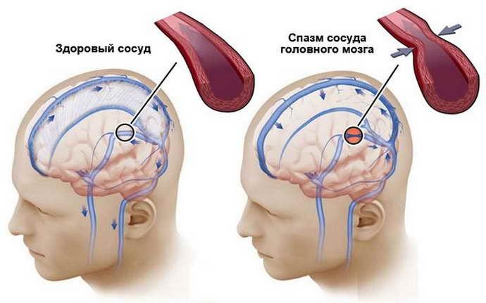 во время сужения кровеносных сосудов, развиваются такие опасные заболевания
