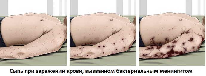Как выглядит сыпь по мере развития процесса менингита