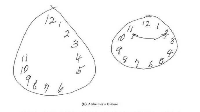 Тесты с рисованием на альцгеймера