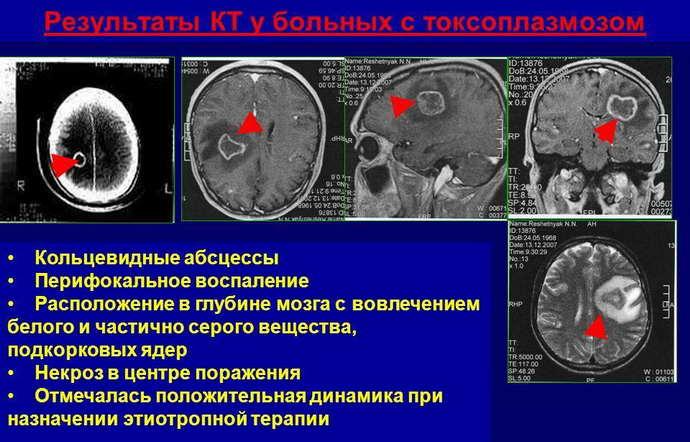 токсоплазмоз головного мозга виды