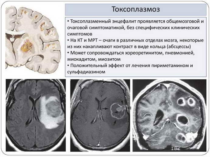 токсоплазмоз головного мозга классификация
