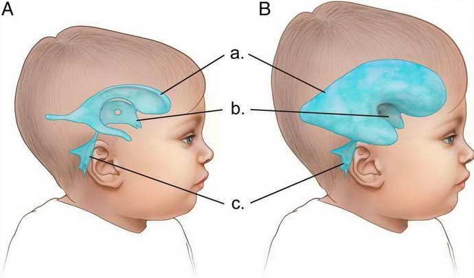 Врожденный токсоплазмоз мозга