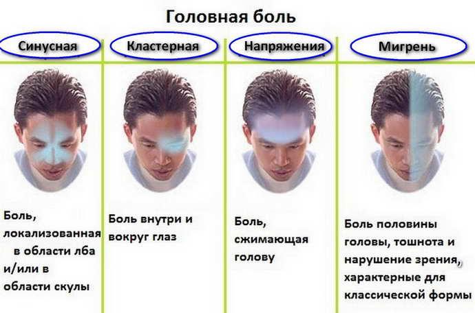 Причины возникновения тошноты при мигренми