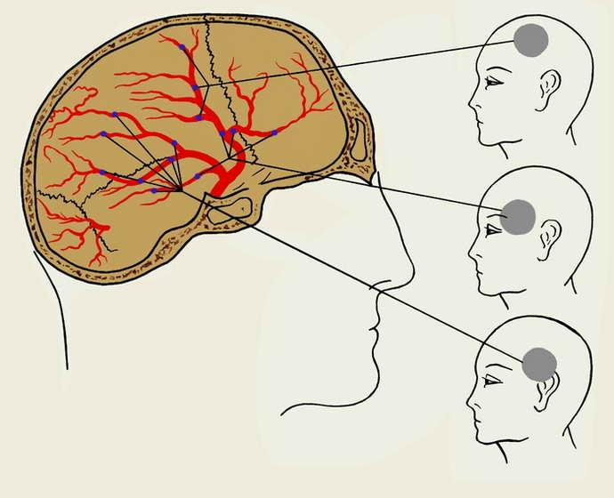 вазомоторная цефалгия что это