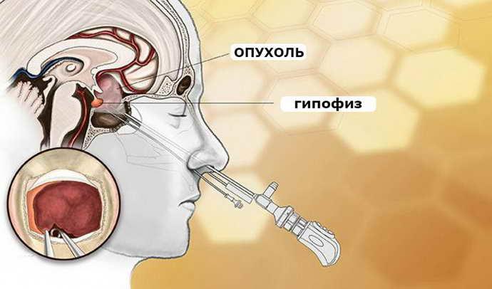 Травмирования здоровых тканей гипофиза