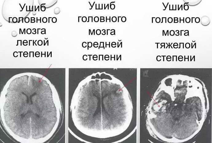 Что такое ушиб мозга