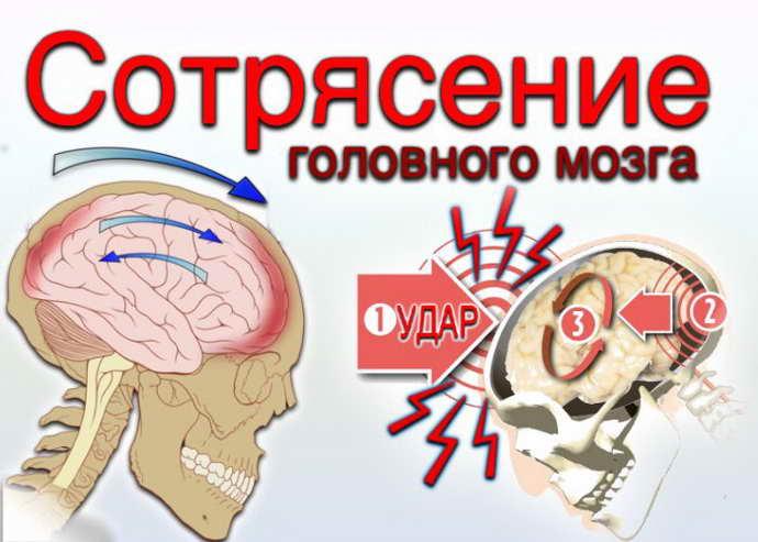 Что такое ушиб мозга и сотрясения мозга
