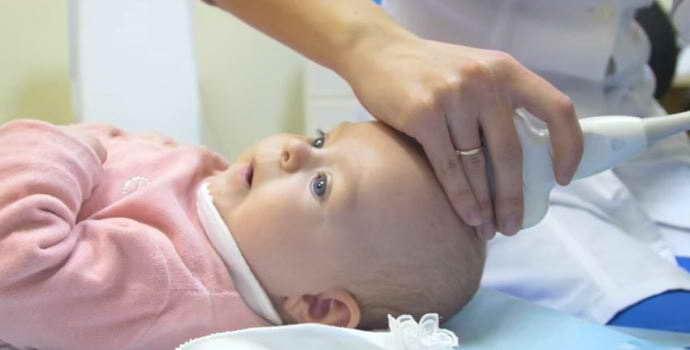 Как проводится УЗИ головы ребенку