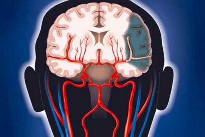 Венозная дисфункция головного мозга