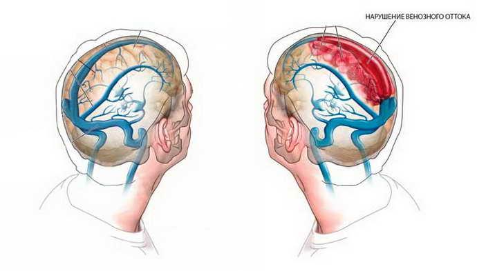 Венозная дисфункция головного мозга что это такое