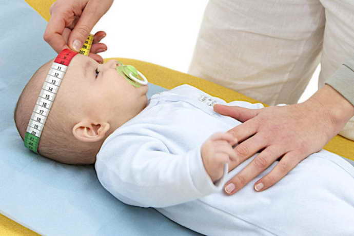 Лечение гидроцефалии у детей
