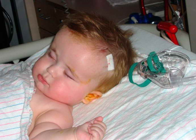 внутренняя гидроцефалия у детей