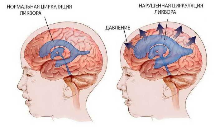 Внутричерепная гипертензия у детей