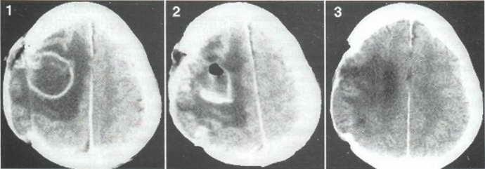 абсцесс мозга этапы развития