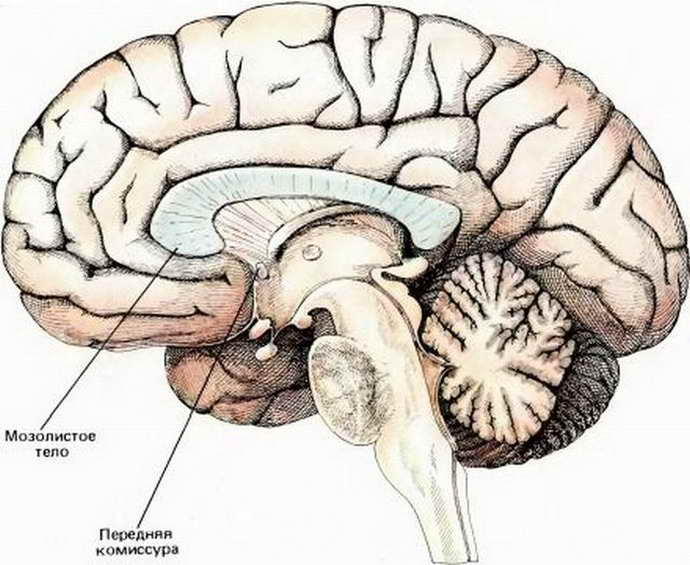 агенезия мозолистого тела когда появляется
