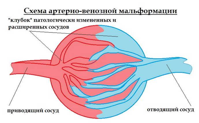 артериовенозная мальформация классификация