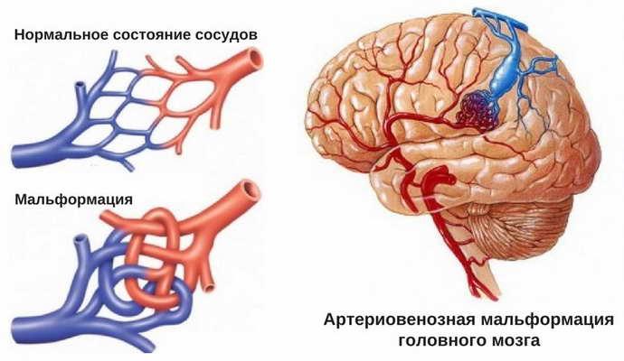 артериовенозная мальформация виды